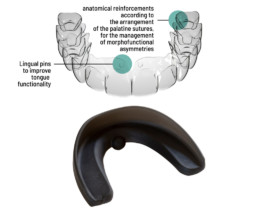 Clear Aligners and Nuvola OP System