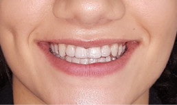 Nuvola Invisible Aligner after