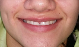 Nuvola Invisible Aligner before